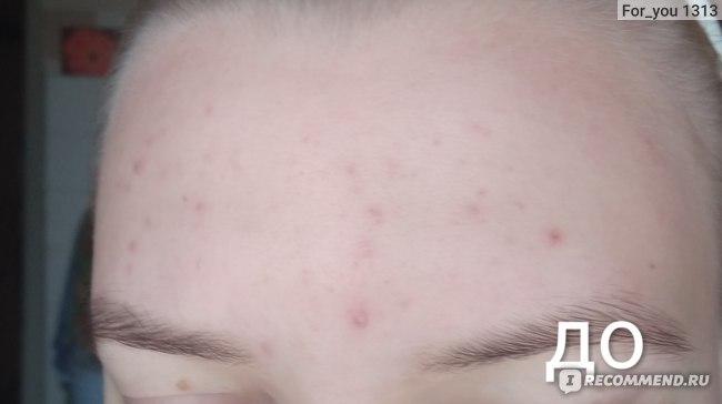 Тканевая маска для лица 5С CURE Strawberry intensive ampoule mask фото