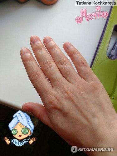 """Средство по уходу за ногтями  и кутикулой с маслом иланг-иланг """"Formagrif"""" фото"""
