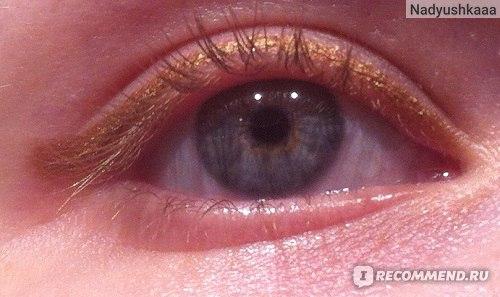 На глазах (искусственное освещение)