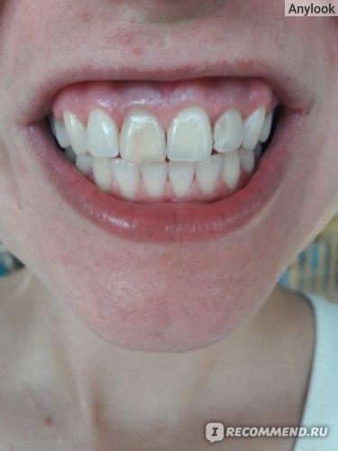 Отбеливание зубов White studio фото