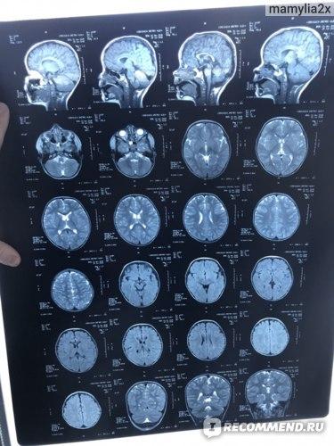 Магнитно-резонансная томография (МРТ) головного мозга фото