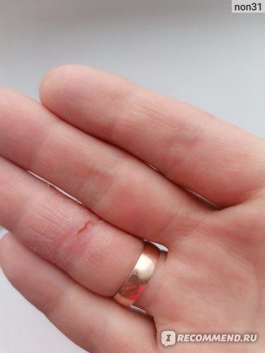 трещина и сухая кожа до использования
