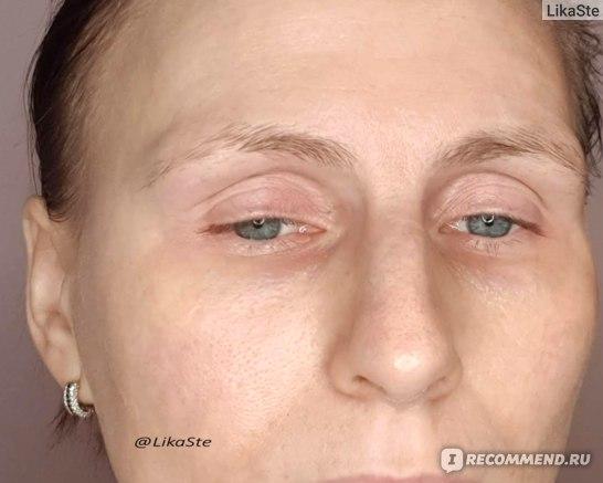 """Belle Vue Derma """"Крем-актив для кожи вокруг глаз"""""""