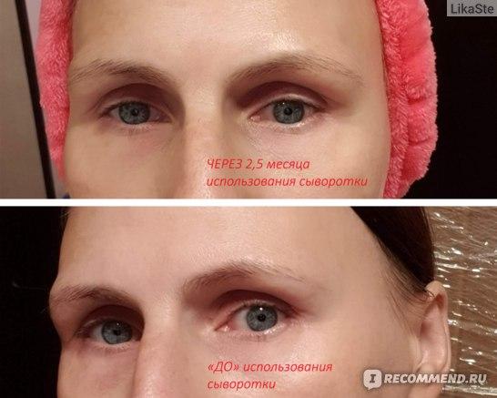 """Неокрашенные брови """"до"""" и через 2,5 месяца после начала использования TopLash lash & brow booster"""