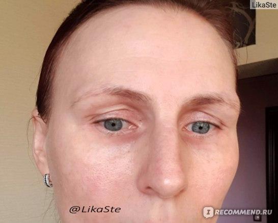 """""""ДО"""" использования Belle Vue Derma """"Крем-актив для кожи вокруг глаз"""""""