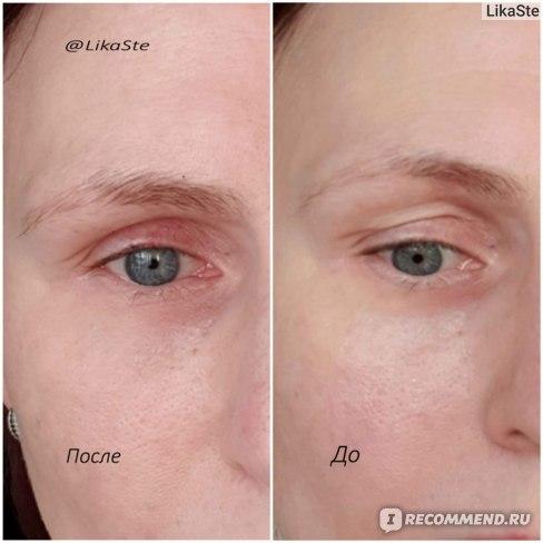"""Belle Vue Derma """"Крем-актив для кожи вокруг глаз"""" . """"ДО"""" (справа) и """"ПОСЛЕ"""" (слева)"""