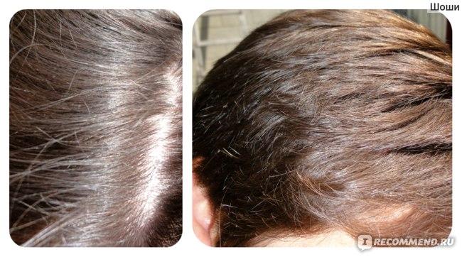 общий вид качества волос