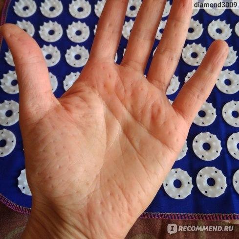 Аппликатор SKY лечебно-профилактический массажер по методике Кузнецова Процив № 188 фото