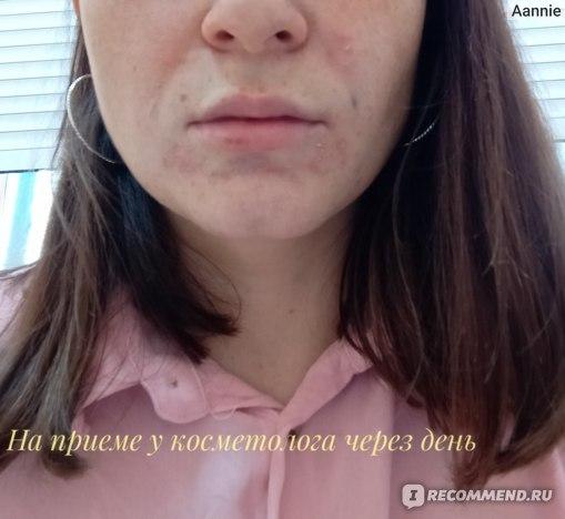 Инъекции гиалуроновой кислоты в носогубные складки фото