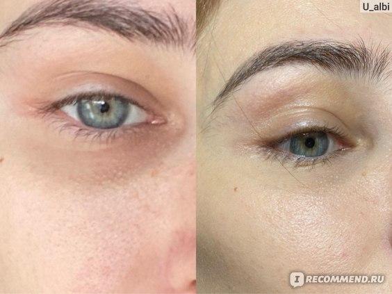 чистая кожа / в тональном средстве...до использования крема от Icon Skin
