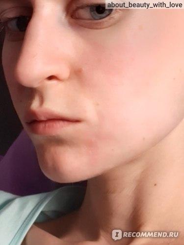 Удаление ретинированного (непрорезавшегося) зуба мудрости  фото