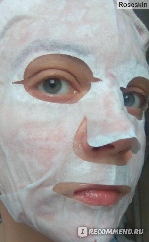 Набор для карбокситерапии Esthetic House CO2 Esthetic Formula Carbonic Mask фото