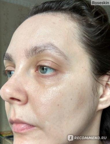 Общее состояние кожи после курса