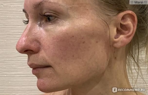 """Криопилинг Белита Cryomezo Complex """"Совершенное очищение + Ровная кожа"""" для лица, шеи и декольте фото"""