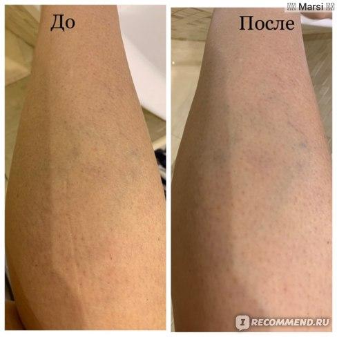 Средства д/лечения варикозного расширения вен STRAGEN PHARMA S.A.  Вазокет фото