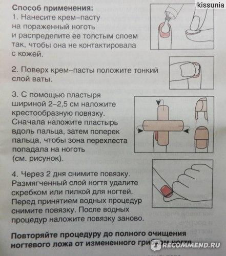 Противогрибковое средство Фармтек Мико-Стоп крем-паста для удаления ногтей пораженных грибком. фото