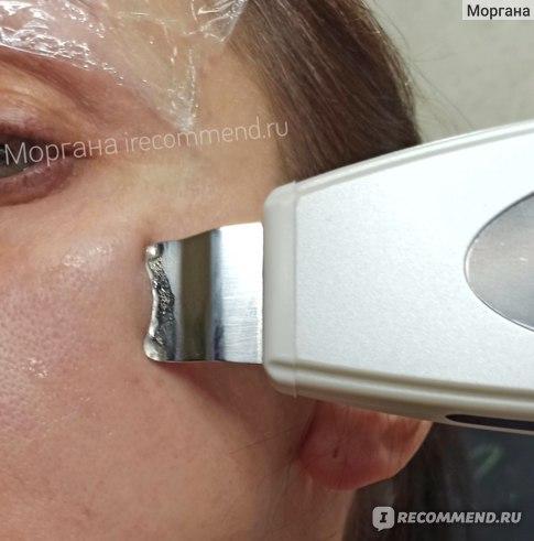 Ультразвуковая чистка. Аппарат для ультразвуковой чистки лица LW-006