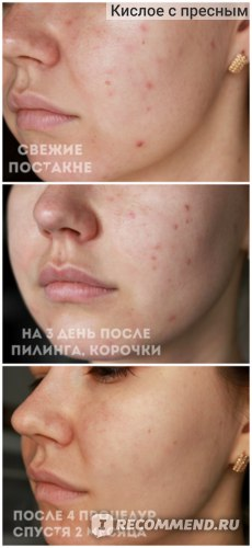 Пилинг для лица Yeouth Glycolic Acid 30% Gel Peel