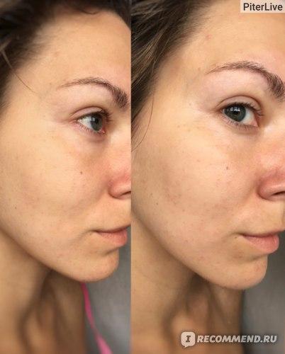 Крем-гель для лица и кожи вокруг глаз БакЗдрав Probioderm Увлажняющий Пробиотический # 17 фото