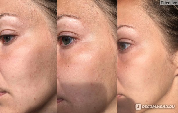 Тоник для лица EcoLab Увлажняющий с гиалуроновой кислотой для сухой и чувствительной кожи фото