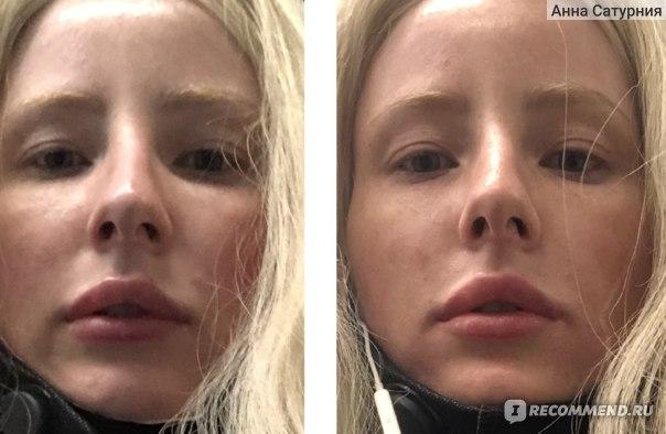 ДО-ПОСЛЕ (внимание на область у крыльев носа и уголки рта)