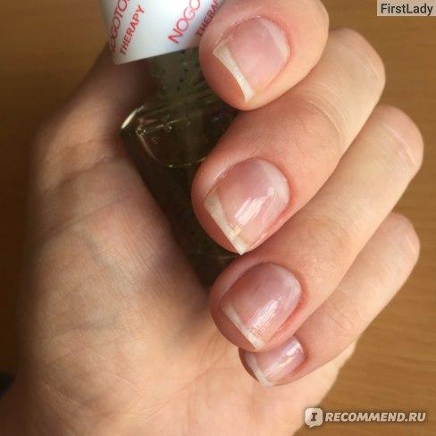 СПА-комплекс для ногтей NOGOTOK восстановление после наращивания фото