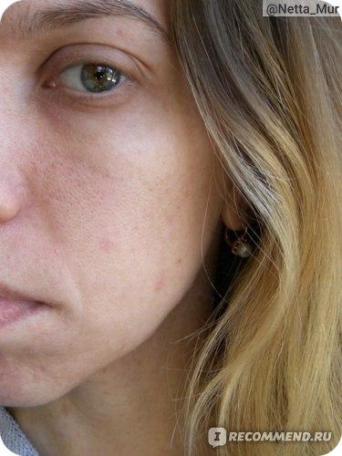 Гелевые патчи для глаз ETUDE ORGANIX MISS ROSE уноси свои круги!   фото