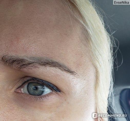 Инъекции препарата Ботулакс фото