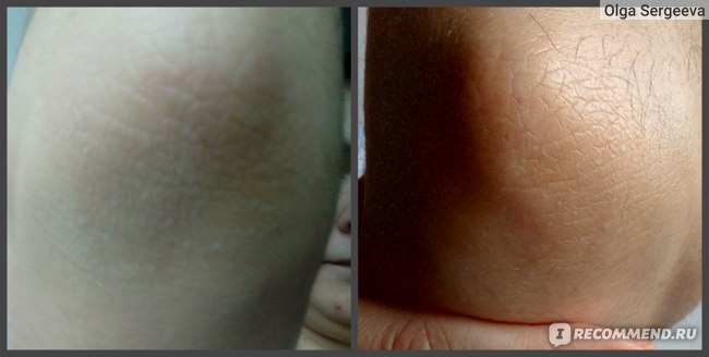локти- слева до применения, справа уже спустя неделю использования