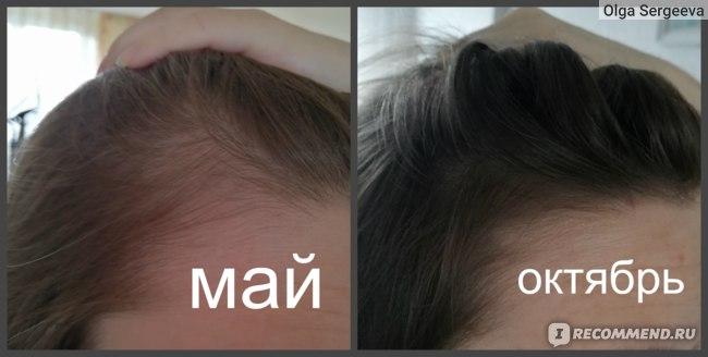 Шампунь от выпадения волос Alerana Интенсивное питание фото