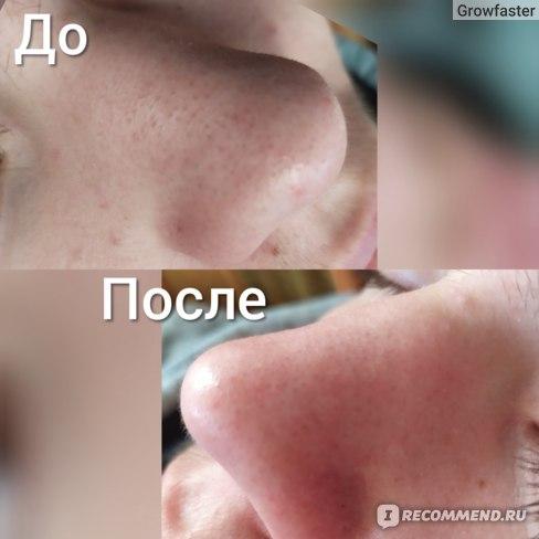 Ультразвуковой прибор для чистки лица Xiaomi Inface ultrasonic ionic cleaner  фото
