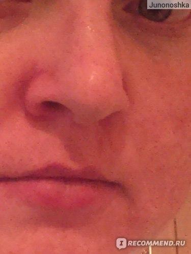 после [разницу увидеть сложно, но кожа более матовой стала, и почему-то фото на томже месте с теми же настройками другого цвета получилось]