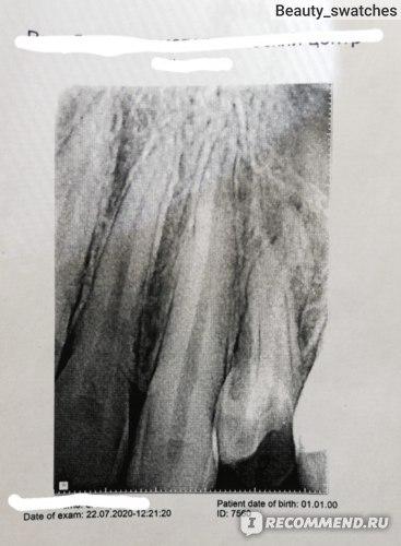 Чёрная часть зуба на фотографии в нижнем правом почти что углу - то, что спасти невозможно