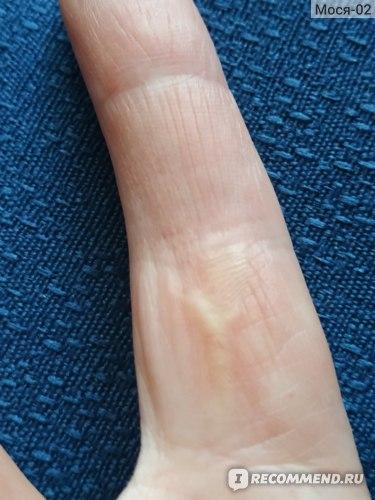 Операция по удалению подмышечного лимфаденита фото