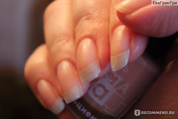 """Лак для ногтей ООО """"РНК"""" усилитель роста с кальцием  фото"""