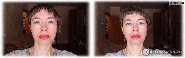 Лицо до/лицо после использования Тканевая маска для лица Jluna с витаминами