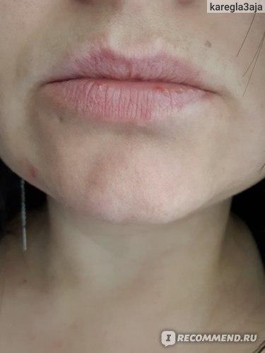 Мои естественные  губы