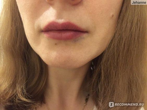 Увеличение губ гиалуроновой кислотой, синяки и отеки