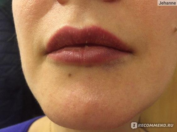 Увеличение губ гиалуроновой кислотой отзыв, синяки и отеки