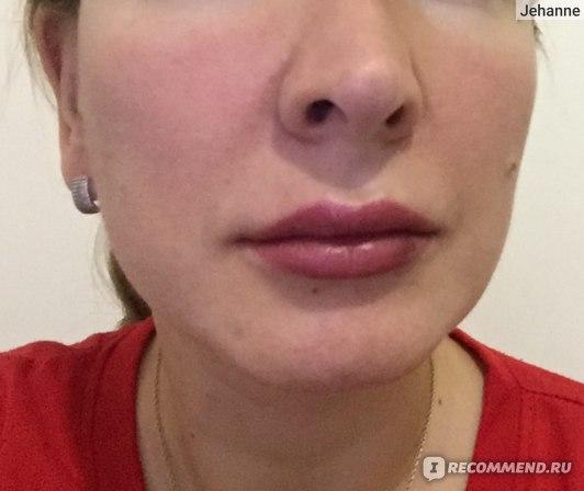 Увеличение губ гиалуроновой кислотой отзыв