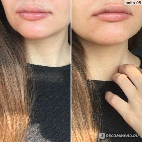 так губы выглядели на следующий день после процедуры