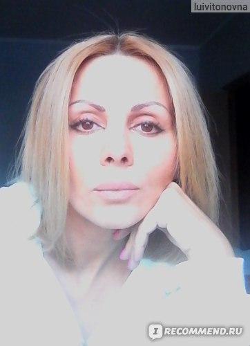 так я выгляжу сейчас - отек давно сошел, и губы выглядят естественно