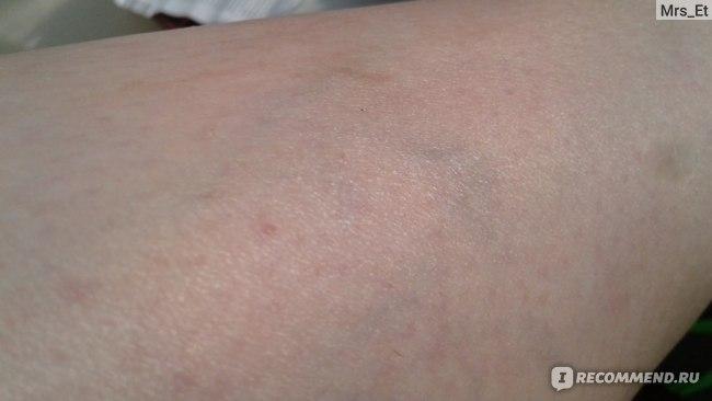 гепариновая мазь от варикоза отзывы