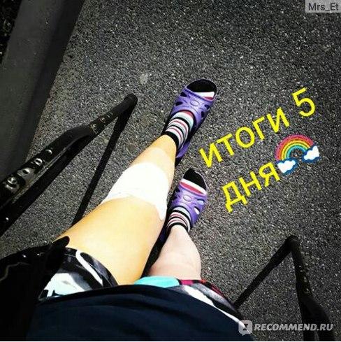 Артроскопия коленного сустава фото
