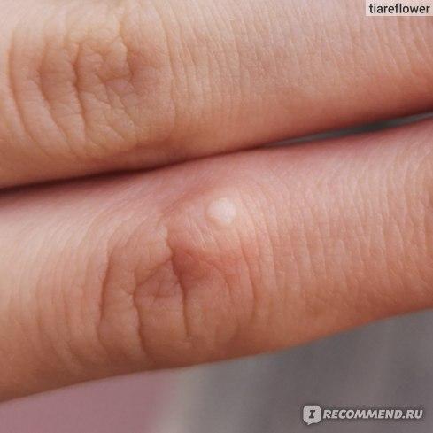 Удаление папиллом, бородавок и родинок криотерапией (жидким азотом) фото
