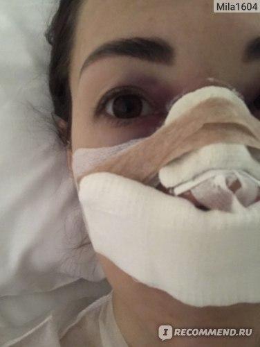 Через полчаса после операции