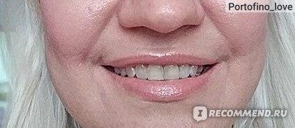 2019-й год. Так мои зубы выглядят сейчас