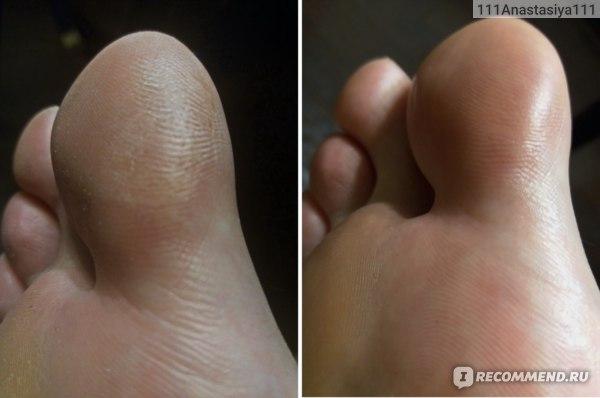 Кожа на пальчике до и после четырех дней применения