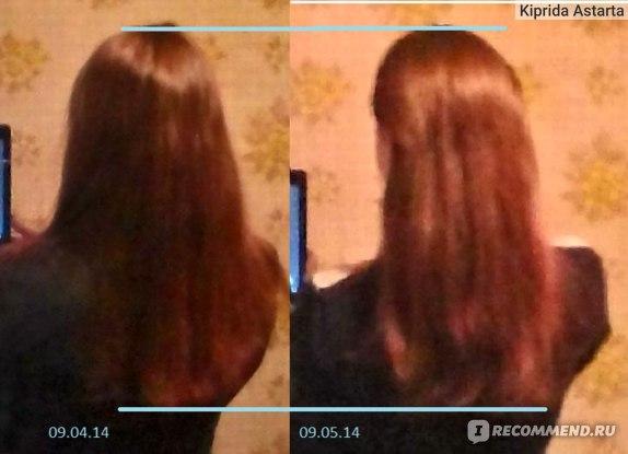 Рост волос без маски