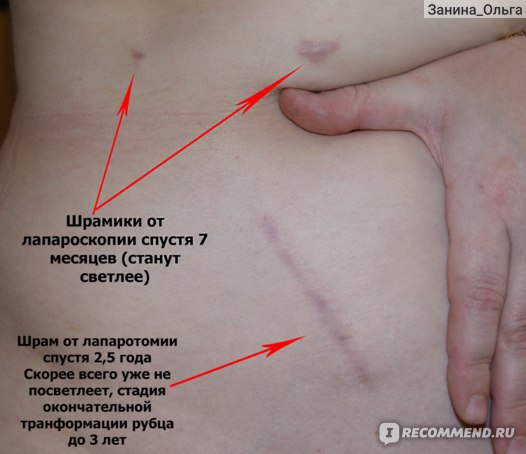Диета После Аппендицита У Детей Лапароскопия. Правильная диета после операции по удалению аппендицита для детей и взрослых